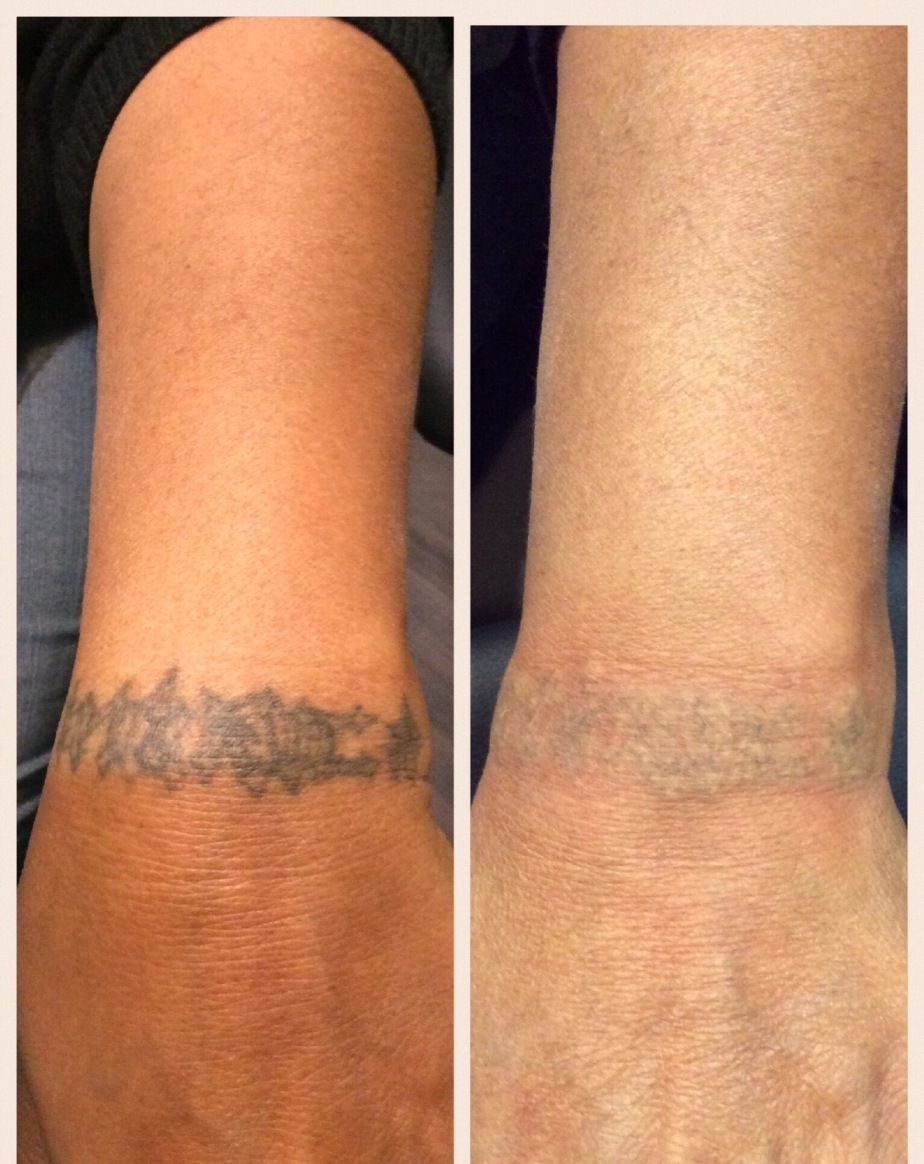 Advanced Technique Tattoo Removal